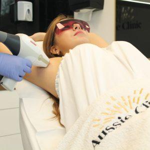 Laserowa depilacja owłosienia Vectus